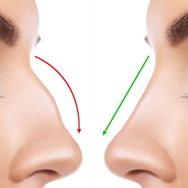 Dermatología Estética - Remodelación sin cirugía